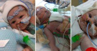 تولد دختری با قلب نصفه + عکس