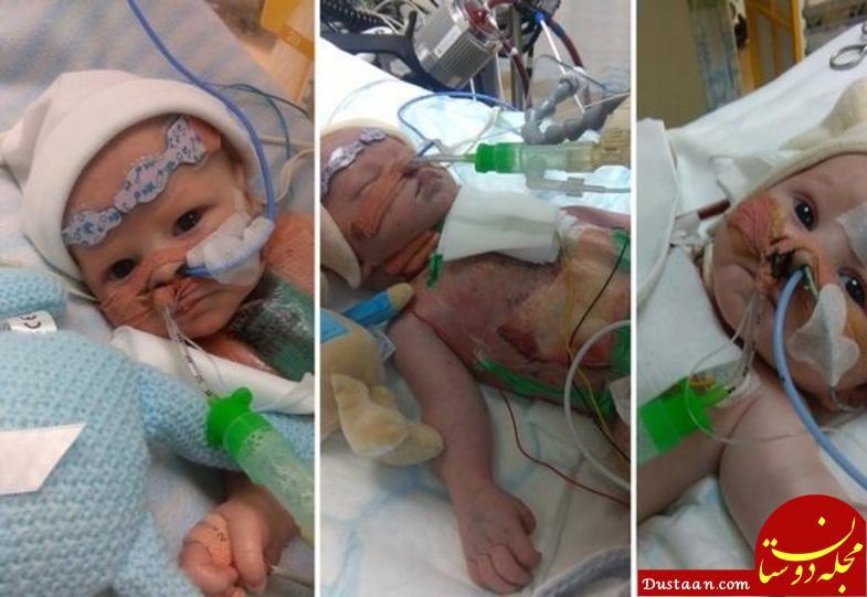 www.dustaan.com تولد دختری با قلب نصفه + عکس