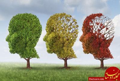 نتیجه تصویری برای آلزایمر