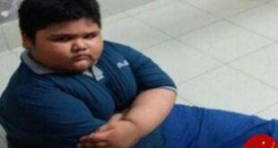برداشتن ۷۵ درصد از معده پسر ۷ ساله برای جلوگیری از چاقی! +عکس
