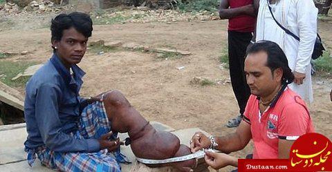 www.dustaan.com تصاویر : روش عجیب و باورنکردنی این مادر هندی برای درمان بیماری فرزندش