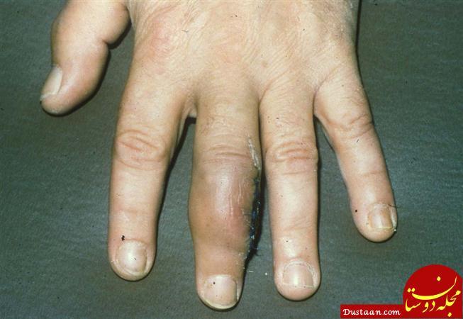 www.dustaan.com سرطان سارکوم چیست؟ + علایم و معرفی راه های درمان