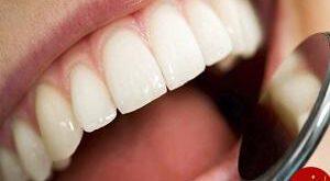 سفید کردن دندانها با این روش های طلایی