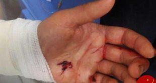 حمله پلنگ به یک چوپان