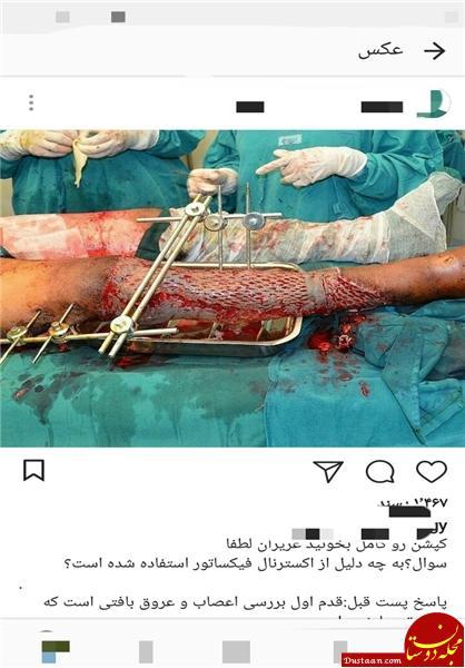 www.dustaan.com عمل جراحی زنده در اینستاگرام برای جذب فالوور و مشتری! +تصاویر