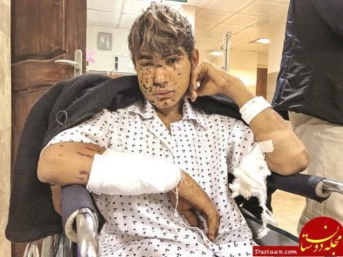 www.dustaan.com پسر 16 ساله ای که در حین فرار از زلزله گرفتار مین شد +عکس