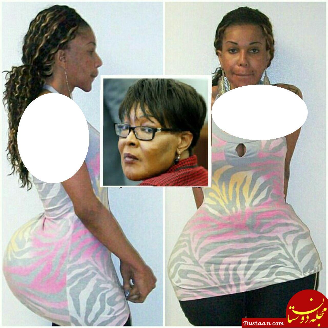 www.dustaan.com عاقبت تزریق ژل سیلیکنی غیراستاندارد به بدن یک زن! +عکس