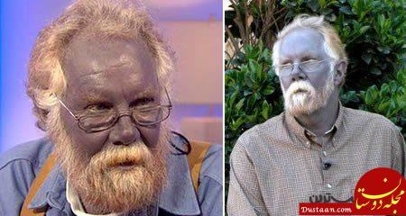 مردی با پوست آبی رنگ! +عکس