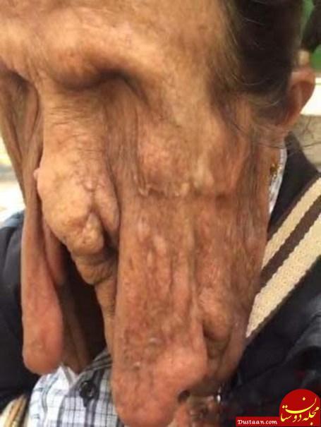 این زن 63 ساله تایلندی در حال ذوب شدن است! +عکس