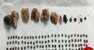 پزشکان از کلیه بیمار نی ریزی 150 تکه سنگ درآوردند! +عکس