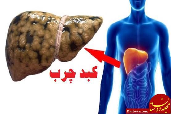 www.dustaan.com روش های خانگی برای درمان فوری کبد چرب