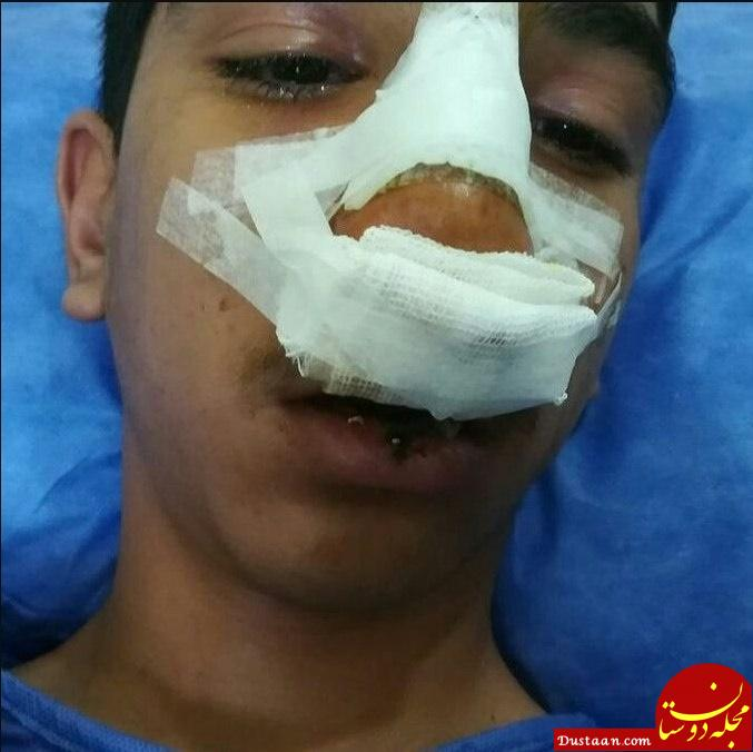 www.dustaan.com ماجرای کتک خوردن وحشتناک دانش آموز جیرفتی از مدیر مدرسه +عکس