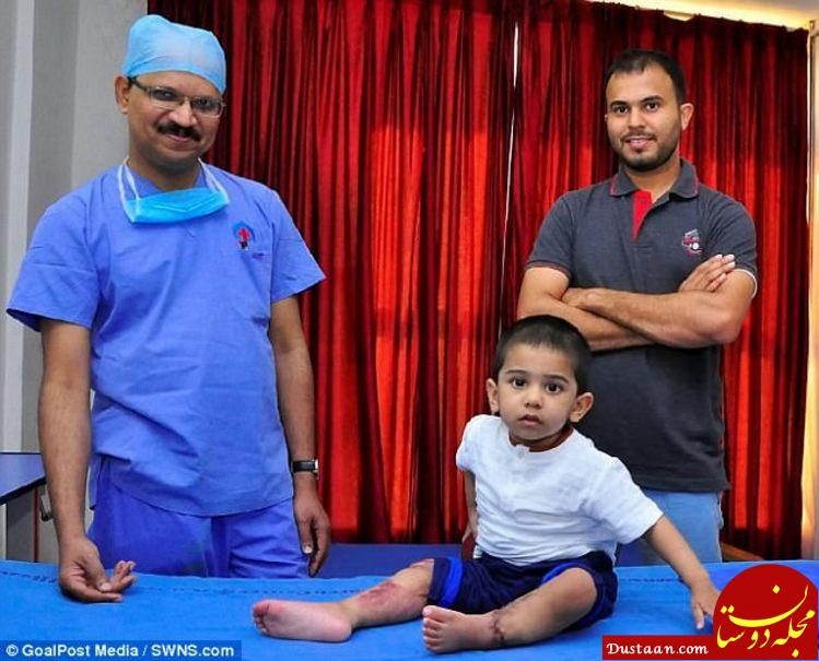 www.dustaan.com پیوند موفقیت آمیز پاهای قطع شده کودک ۲ ساله در هند +عکس