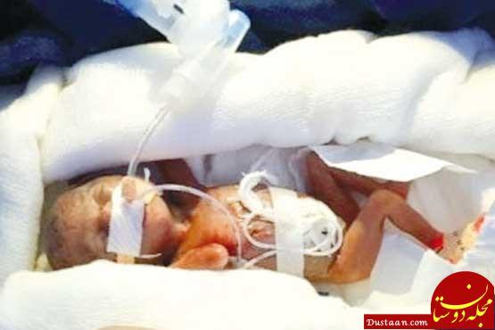 www.dustaan.com تولد کم وزن ترین نوزاد جهان در هند! +عکس
