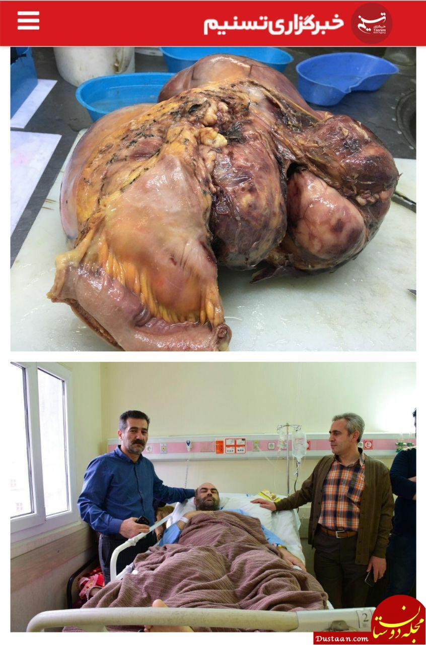 www.dustaan.com خارج کردن غده 13 کیلویی از شکم مرد بیمار در تبریز! +تصاویر