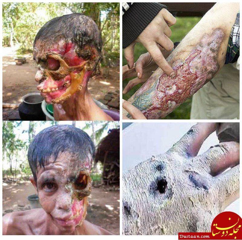 www.dustaan.com مخدر بسیار قوی که انسان را شبیه زامبی می کند! +تصاویر