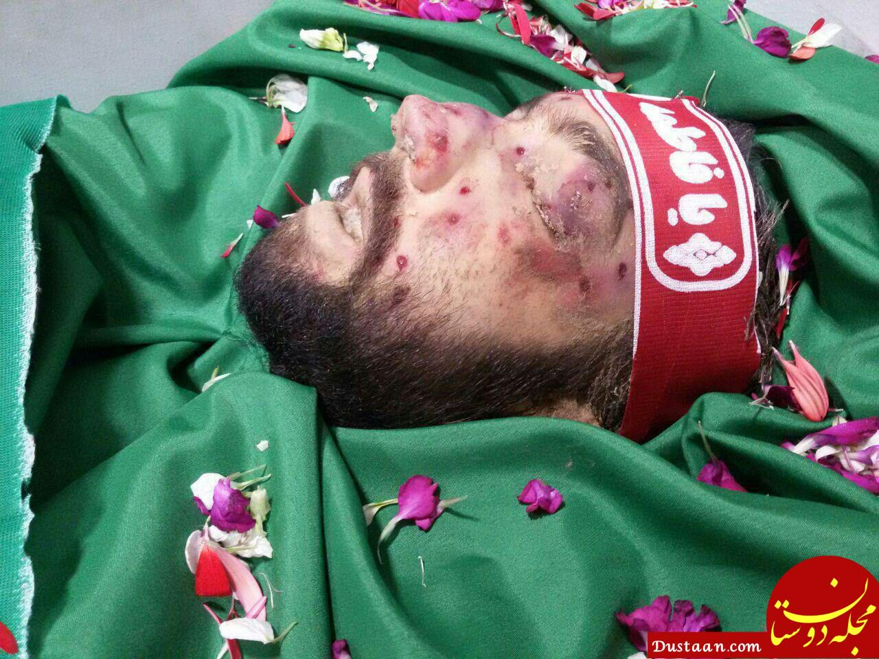 www.dustaan.com تصویری از پیکر مطهر شهید محمد حسین حدادیان +نحوه شهادت