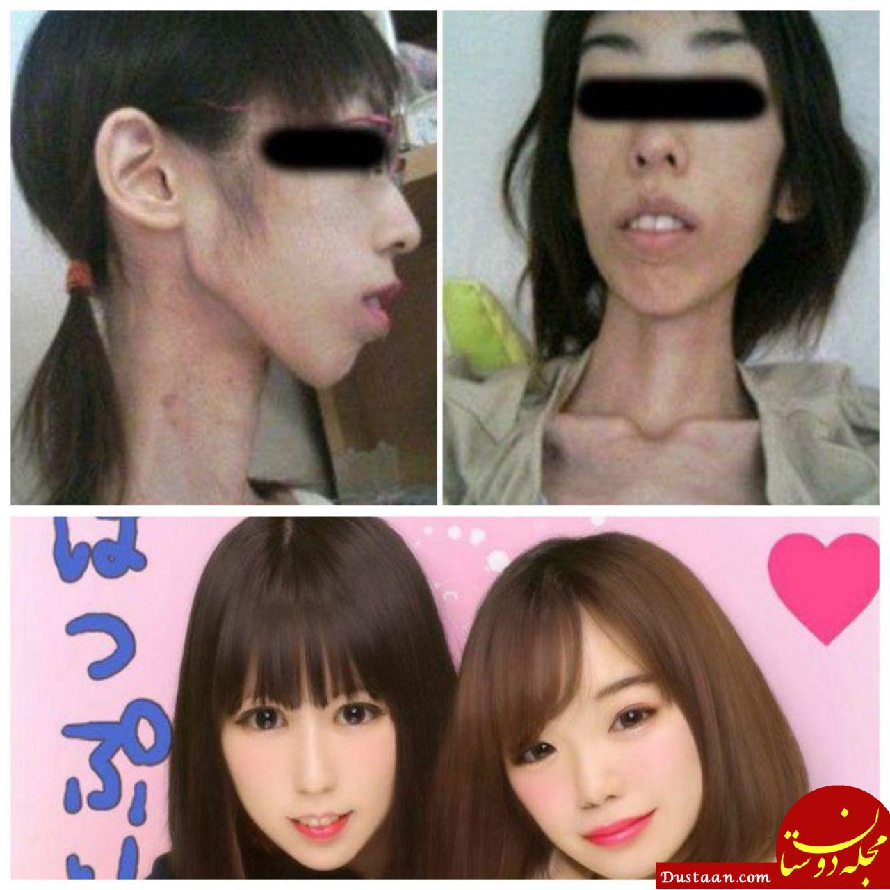 www.dustaan.com دختر جوانی که به خاطر شکنجه والدینش 17 کیلو شد! +تصاویر