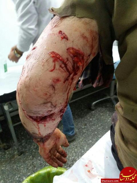 www.dustaan.com حمله وحشتناک پلنگ خشمگین به مرد زنجانی! +عکس