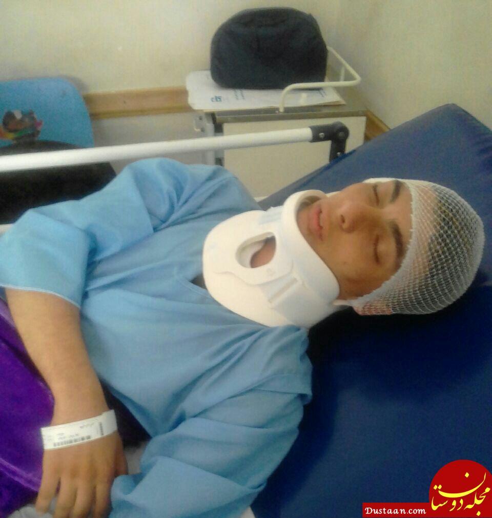 www.dustaan.com آسیب مغزی یک دانش آموز مشگین شهری +عکس