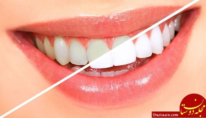 www.dustaan.com روش های خانگی برای سفید کردن دندان