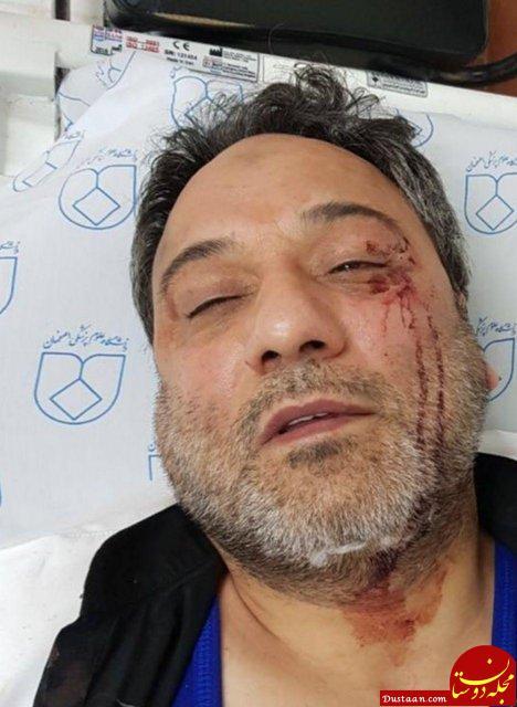 www.dustaan.com حمله همراهان یک بیمار به پزشک! +عکس