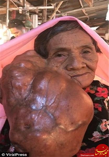 www.dustaan.com توموری بسیار عجیب در صورت زن فیلیپینی +تصاویر
