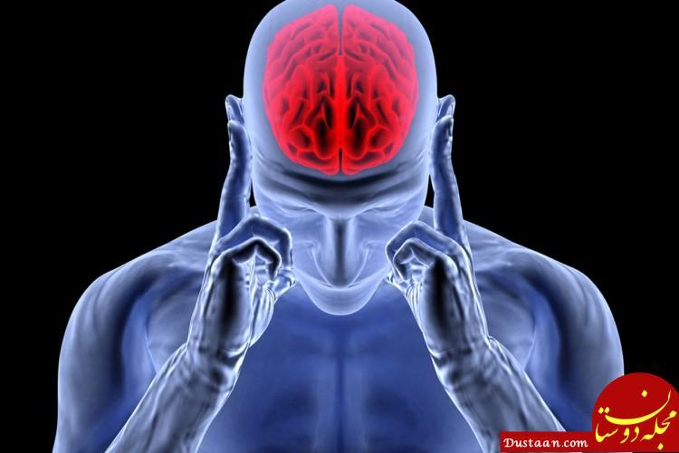 بهبود بیماران سکته مغزی با تزریق بوتاکس!