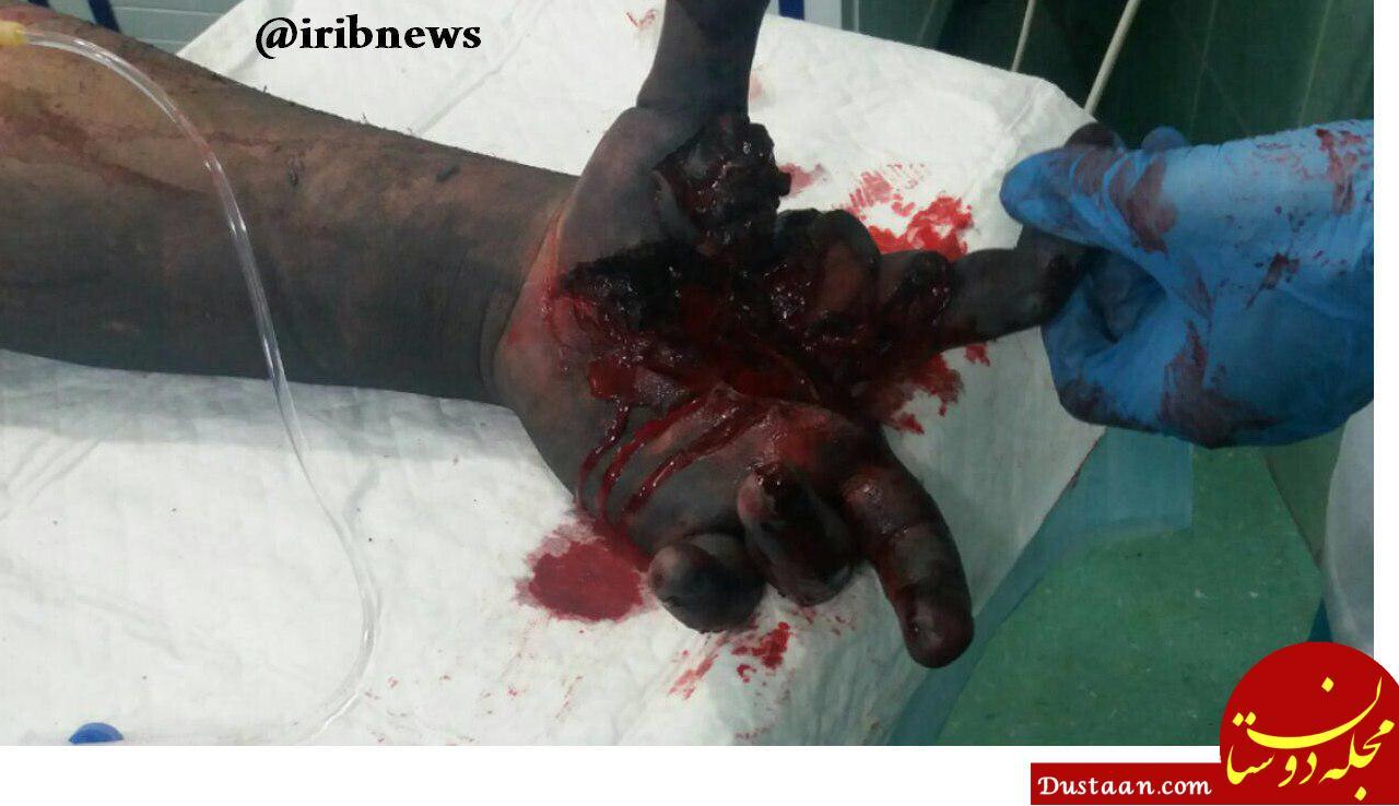 www.dustaan.com تصاویر دلخراش از حادثه دیدگان چهارشنبه سوری 96 (تصاویر +18)