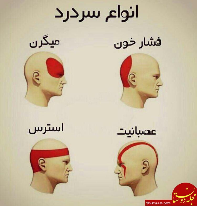 انواع سردرد و راه های درمان آن را بهتر بشناسید