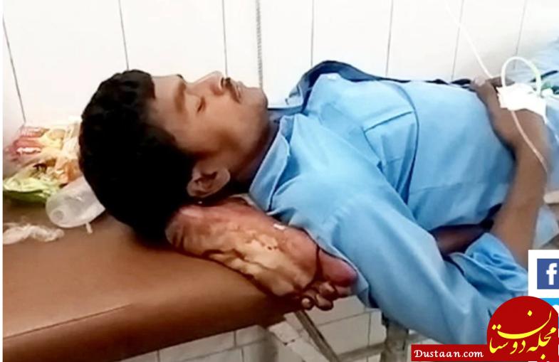 www.dustaan.com استفاده جنجالی از پای قطع شده بیمار به جای بالش! +تصاویر
