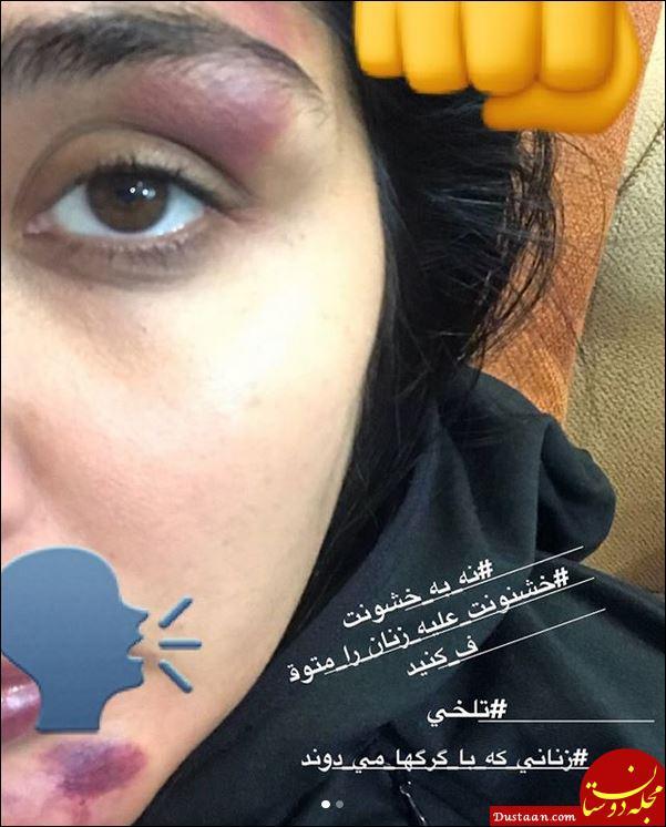 www.dustaan.com ماجرای حمله فرد ناشناس به مریم معصومی در خیابان! +تصاویر