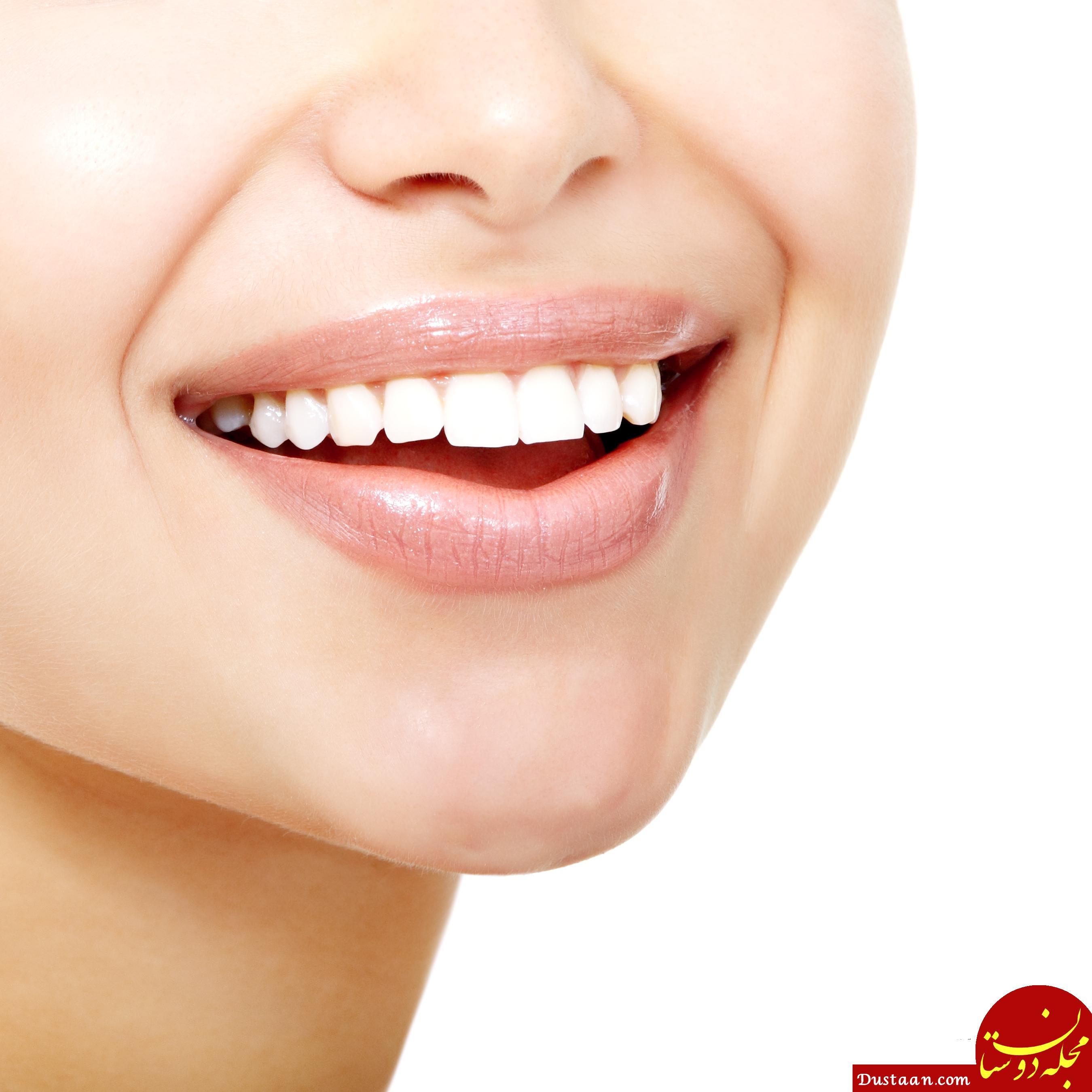 www.dustaan.com دندان های سفید و شفاف مقاومت کمتری دارند!