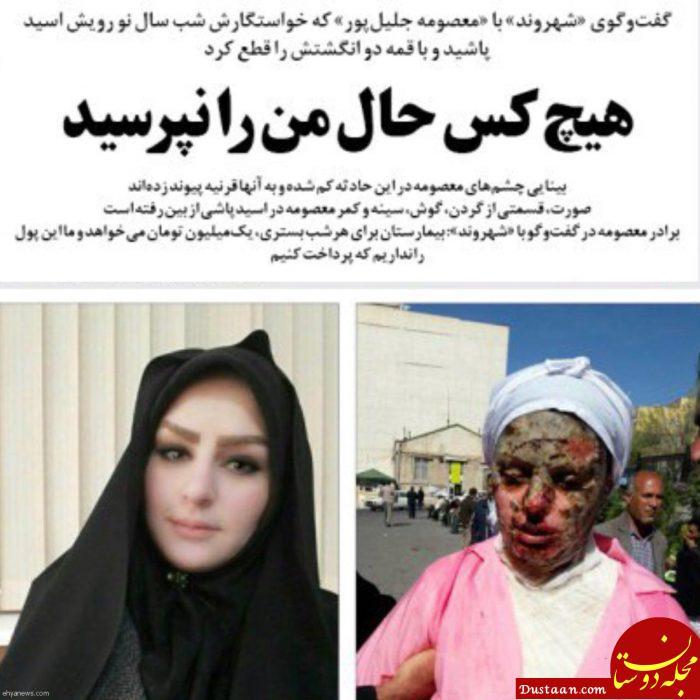 www.dustaan.com آخرین وضعیت درمانی معصومه جلیل پور، قربانی اسیدپاشی در تبریز