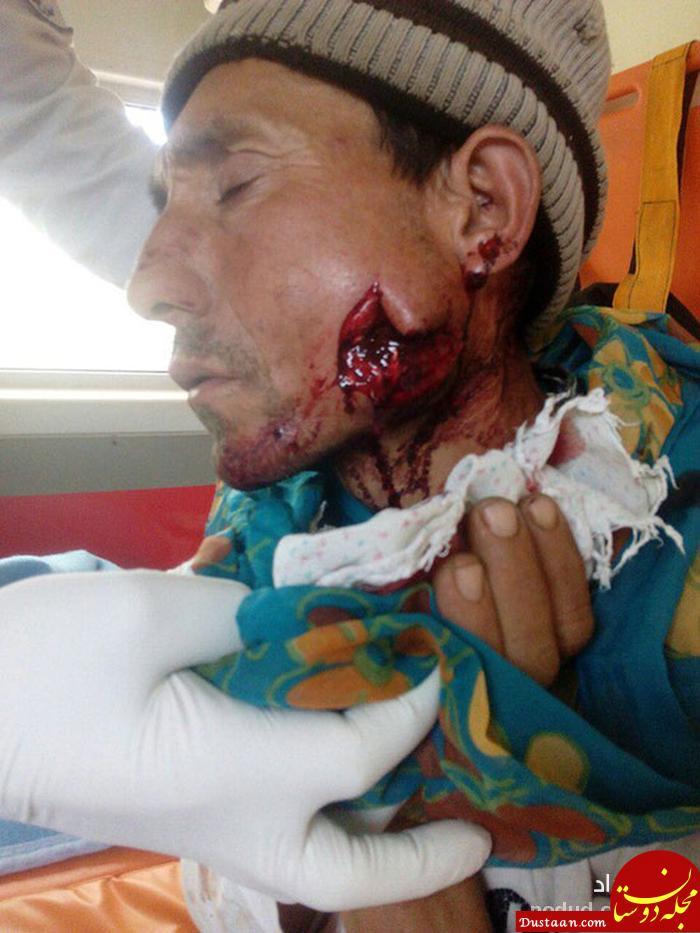 www.dustaan.com عکس های دلخراش از حمله یک پلنگ به چوپان بیچاره در کلاله +16