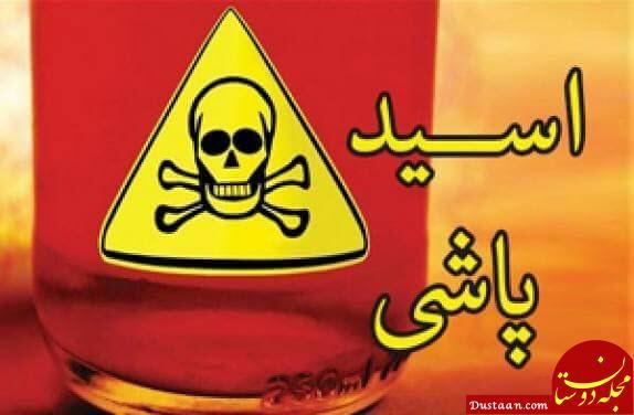 www.dustaan.com اسید پاشی مرد خشن به روی همسرش