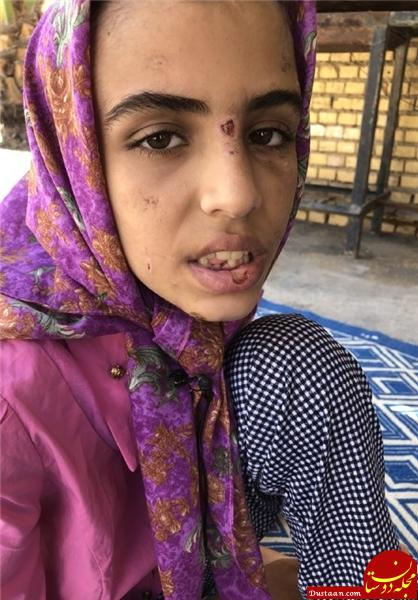 www.dustaan.com از شکستن دندان با چکش تا بستن لب های دختر بچه ۱۲ ساله! +تصاویر