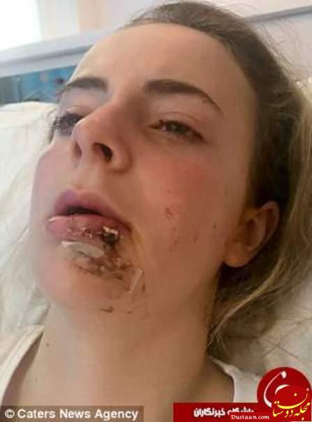 www.dustaan.com بلایی که اسب دیوانه برسر دختر 15 ساله آورد +تصاویر