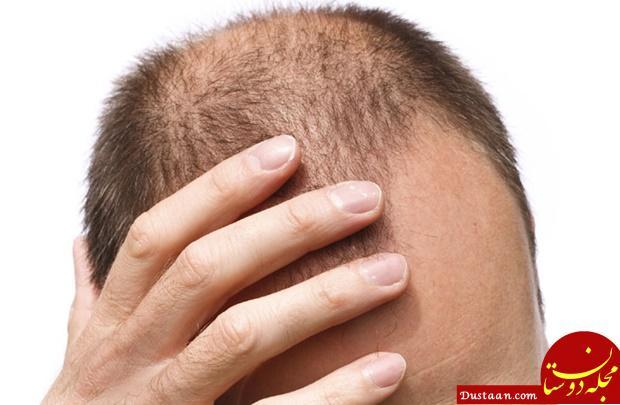 www.dustaan.com همه چیز درباره ریزش ارثی مو /آیا درمانی برای ریزش موی ارثی وجود دارد؟