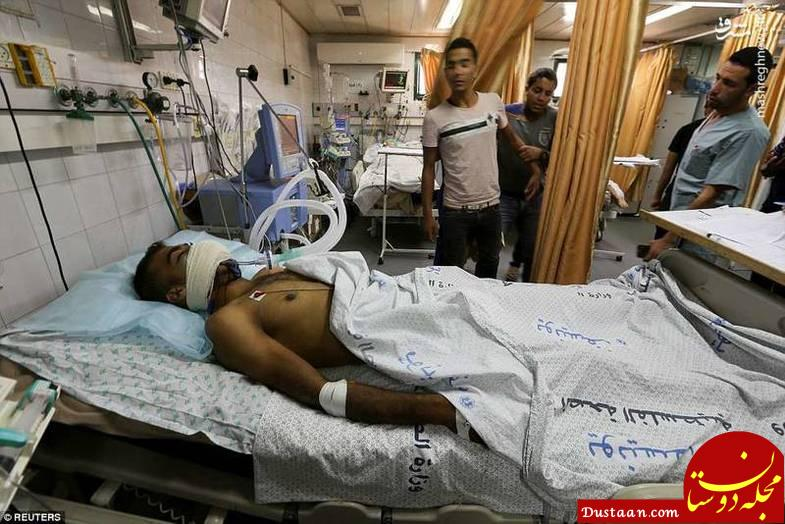www.dustaan.com اصابت گاز اشک آور به دهان یک جوان فلسطینی +تصاویر