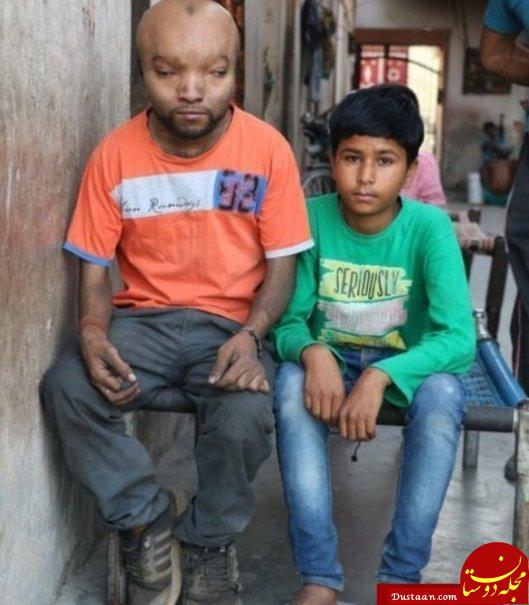 www.dustaan.com حیرت پزشکان از مشاهده بیماری عجیب این مرد! +تصاویر