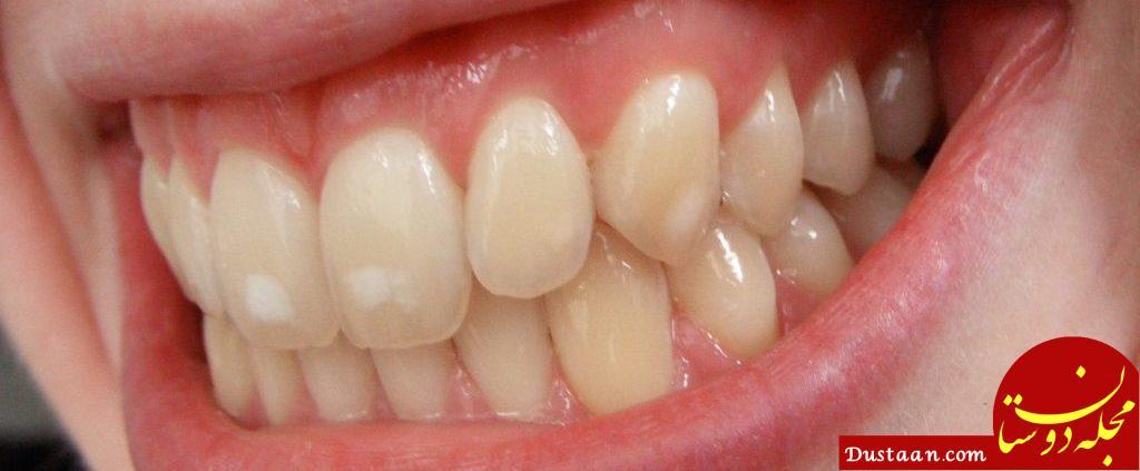 www.dustaan.com دلیل ایجاد لکه های سفید روی دندان چیست؟ +روش درمان لکه های سفید از دندان