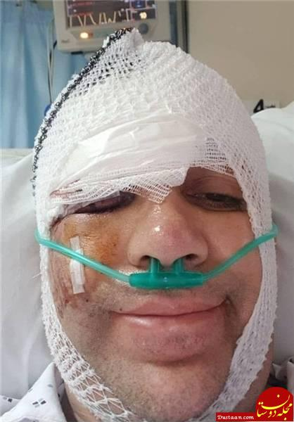 www.dustaan.com «امیر کربلایی زاده» کمدین سینما از بیمارستان مرخص شد
