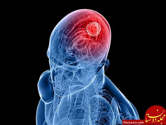 www.dustaan.com پیشگیری از خطر سکته مغزی با رعایت چند نکته!