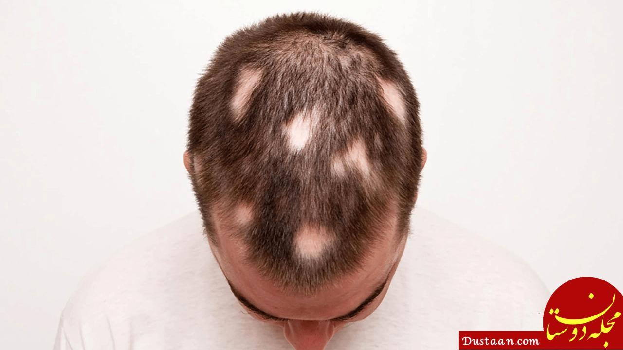 www.dustaan.com همه چیز درباره ریزش موی سکه ای / از دلایل ریزش سکه ای مو تا راه های درمان