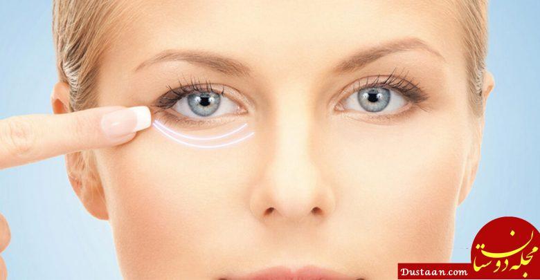 www.dustaan.com روش های خانگی و موثر برای درمان سیاهی دور چشم