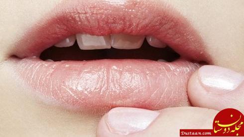 www.dustaan.com روش های خانگی برای درمان سریع تبخال