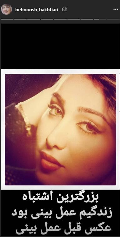 www.dustaan.com عکس دیدنی بهنوش بختیاری قبل از عمل زیبایی بینی!