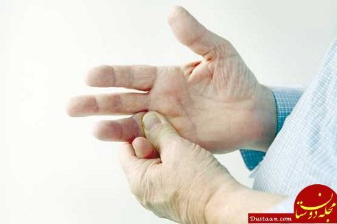 www.dustaan.com علت ایجاد گزگز دست و روش های درمان آن