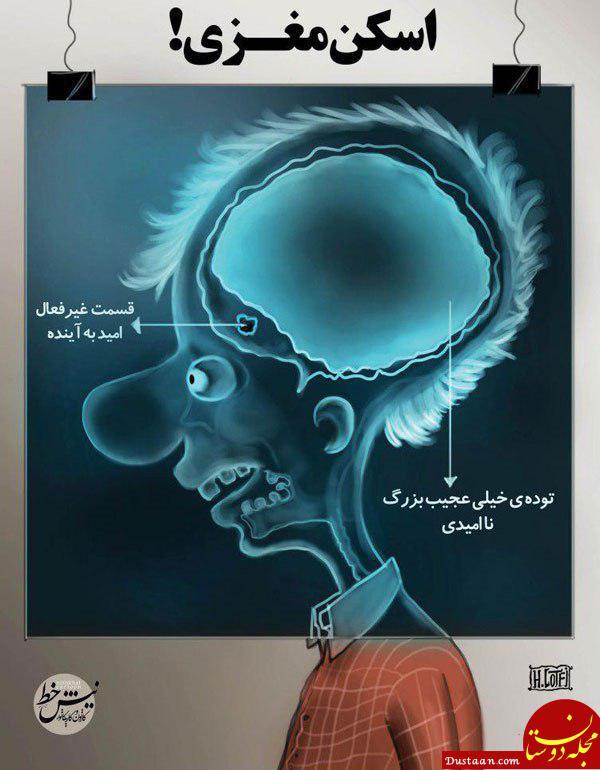 www.dustaan.com ببینید: اسکن مغزی یک ایرانی در شرایط کنونی! +عکس